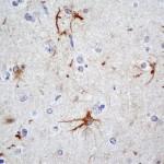 Astrocitosis reactiva.