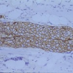 Carcinoma ductal de mama