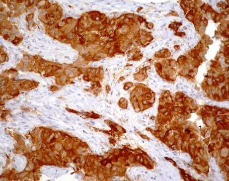 EGFR-del 19 (expresión difusa)