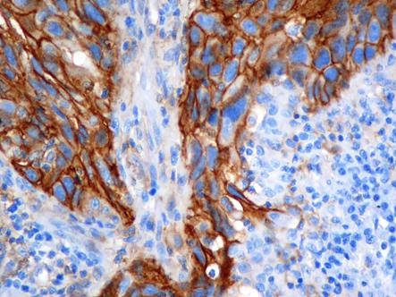 Adenocarcinoma de pulmón con expresión de PD-L1.