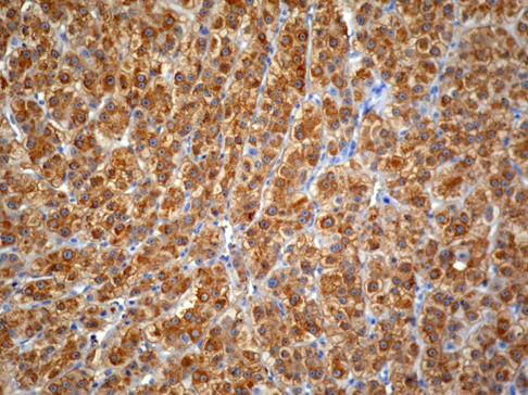 Hepatocarcinoma con expresión difusa de GS.